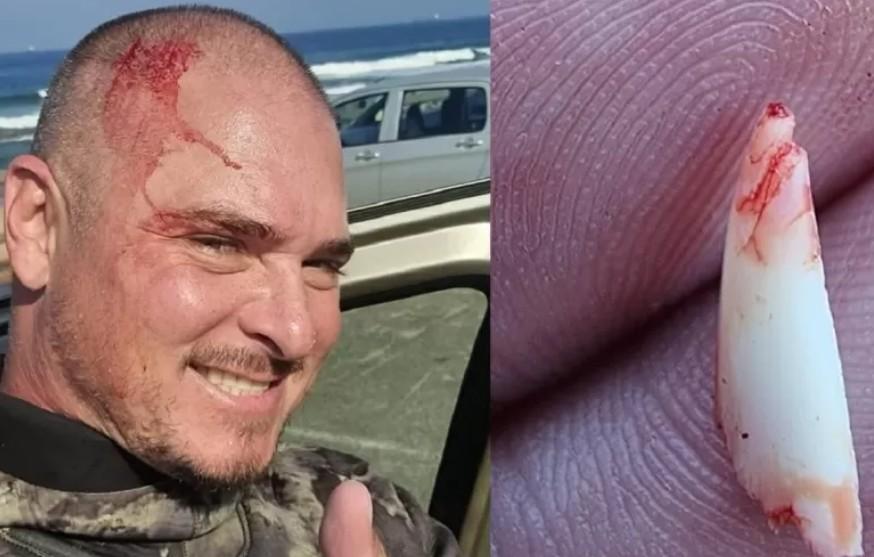 Capturar 48 - Pescador subaquático remove dente de tubarão da cabeça após ataque - VEJA VÍDEO