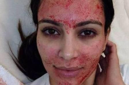xblog vampire.jpeg.jpg.pagespeed.ic .XgQWt12XsE - Dona de salão é presa após clientes se infectarem com HIV durante 'lifting de vampiro'