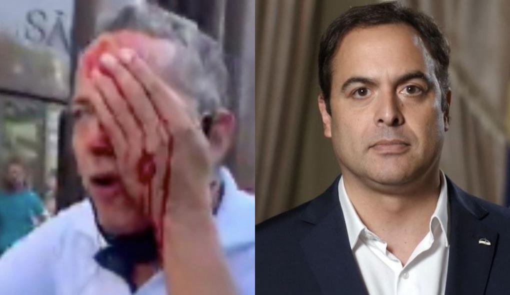 1622401967364214 - Paulo Câmara diz que governo deve indenizar feridos nos protestos em Recife