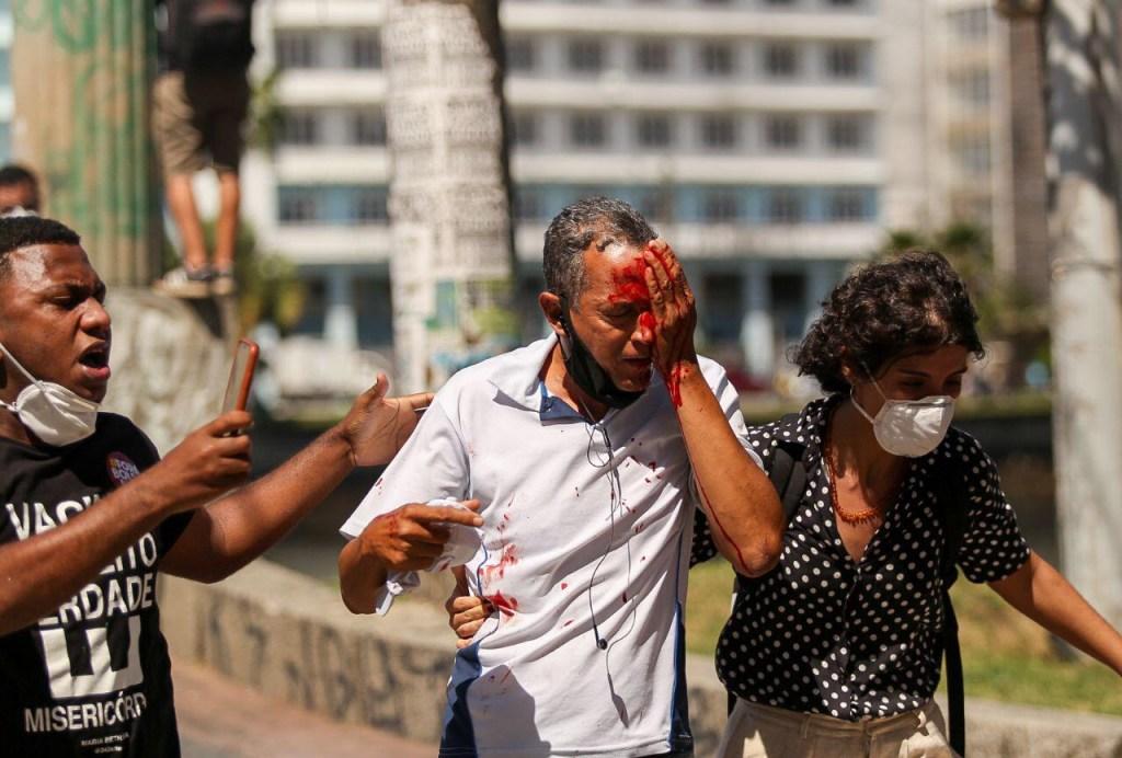 Credito Hugo Muniz 1024x692 - EM RECIFE: Homem baleado pela PM não participava da manifestação contra Bolsonaro