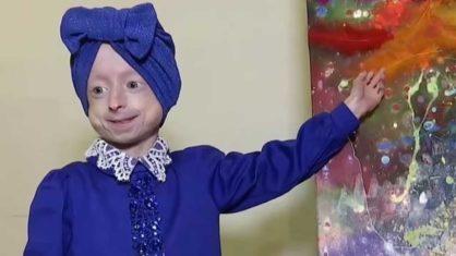 iryna irochka khimich 418x235 1 - Com condição genética rara, menina de 10 anos morre 'de velhice'