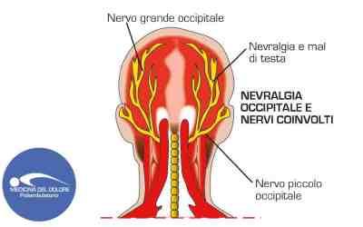 Nevralgia occipitale