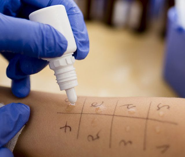 Allergy Tests By Plant Species