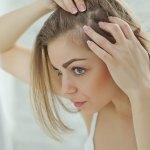 sposób na wypadanie włosów