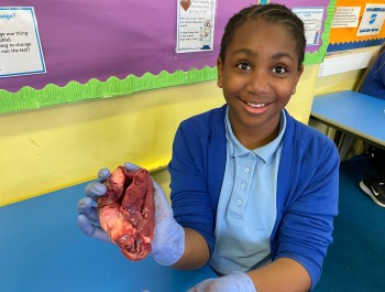 Dissecting a Heart! 💔