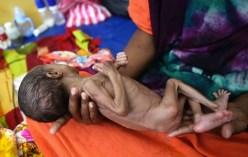 La già difficile situazione alimentare si è aggravata a causa della guerra civile. I primi a soffrirne sono i bambini.