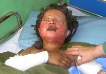 Una ragazza col volto completamente ustionato a causa del bombardamento del suo villaggio da parte delle truppe Usa.