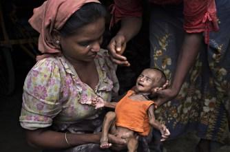 Una bambina rohingya denutrita in un campo profughi in Bangladesh.