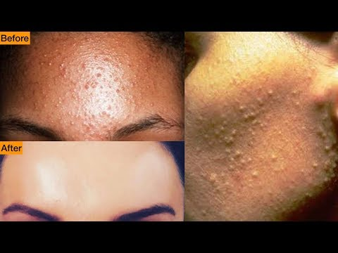 Get Rid Of Tiny Bumps On Face || Simple Home Remedy || Mamtha   Nair Poppinzits.com
