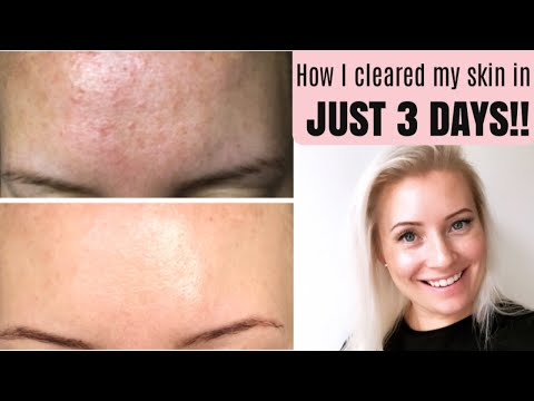 GET RID OF TINY BUMPS ON FOREHEAD FAST | HOW TO TREAT FUNGAL   ACNE (MALASSEZIA) | BEING MRS DUDLEY Poppinzits.com