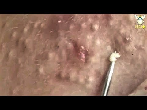 How To Get Rid Of Acne – Blackheads & Whiteheads Removal   With Oddly Satisfying Relaxing Music 29956! Poppinzits.com
