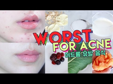 WORST FOODS FOR ACNE! • Get Rid of Hormonal Acne Naturally   🌴 Liah Yoo Poppinzits.com