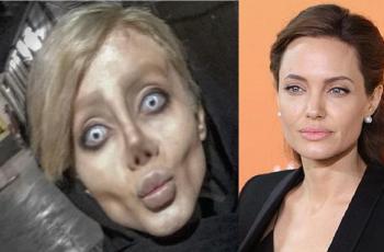 Mulher passa por 50 cirurgias 'só para ficar parecida com Angelina Jolie