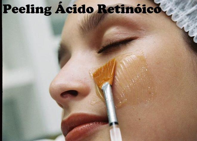 Não é o método mais eficaz mas é um aliado poderoso já que promove a hidratação da pele produzindo novo colágeno. O tratamento com creme é demorado.
