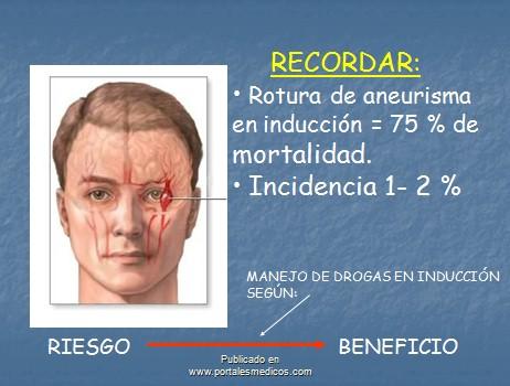 manejo_anestesico_cirugia_aneurisma/rotura_aneurisma_induccion_anestesica