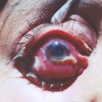El ojo purulento