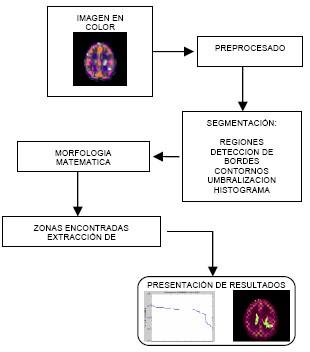 astrocitoma_analisis_imagen