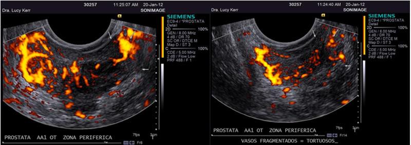 próstata globosa con calcificações de permeio