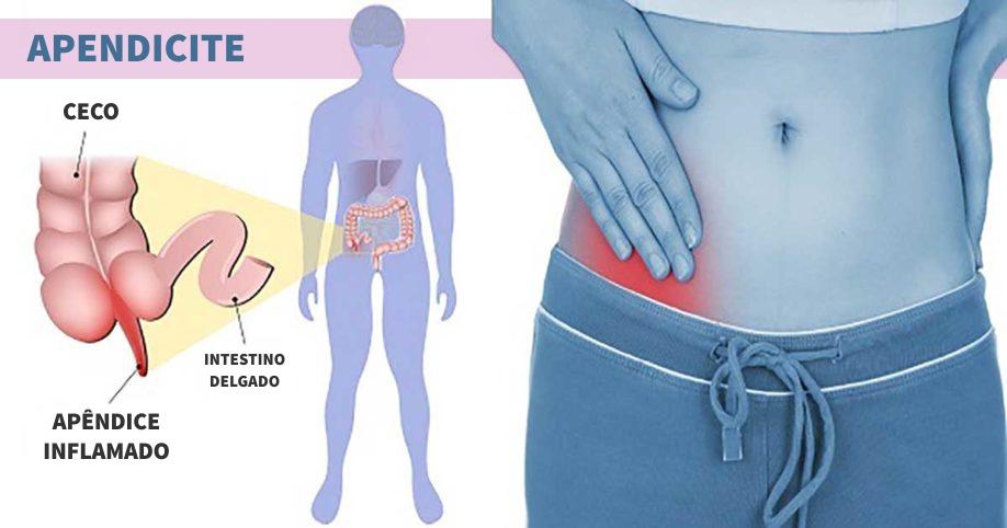 o que e a apendicite - grafico adaptado