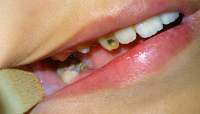 angina de ludwig - estudo de caso - denticao