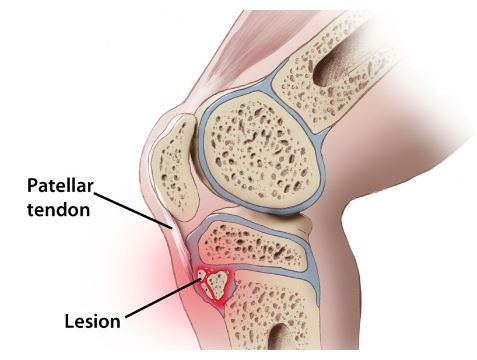 http://differentialdiagnosislowerleg.weebly.com/osgood-schlatter-disease.html