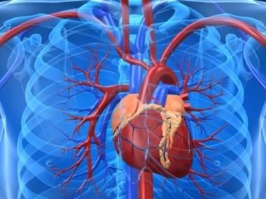 Quatro doenças do coração que mais matam
