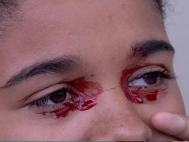 Sangramento nos olhos