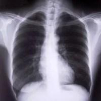 Doenças Respiratórias -  Tipos, Diagnóstico e  Tratamento