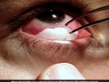 Mulher com doença rara chora cristais brancos
