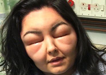 Alergia a tinta de cabelo