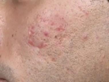 Vitamina B12 afeta saúde da pele