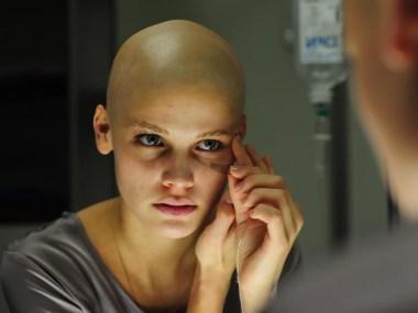Estudo aponta aumento de câncer em população de 20 a 49 anos
