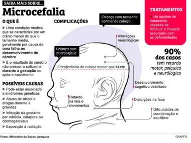 Confirmado: Zika causa microcefalia