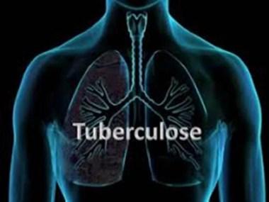 HGRS passou a realizar teste rápido para detectar a tuberculose
