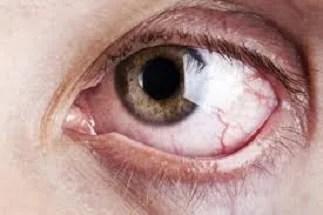 Descolacamento de retina