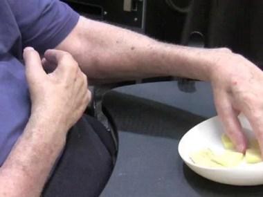 Transplante devolve movimentos de braços e mãos a tetraplégicos