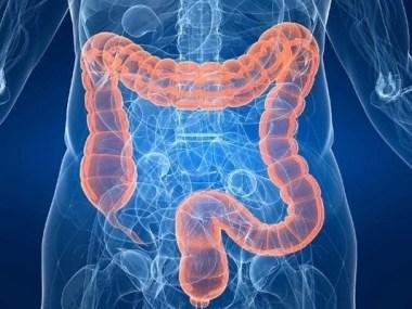 Doenças intestinais