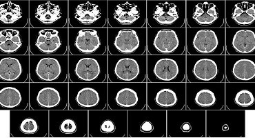 COVID-19 pode reduzir volume da massa cinzenta no cérebro