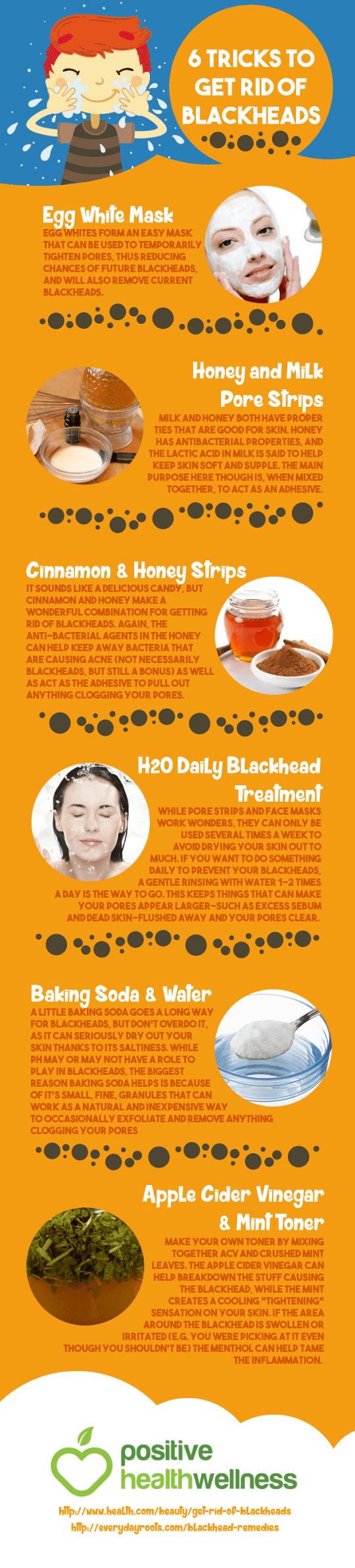 6 Tricks to Get Rid of Blackheads