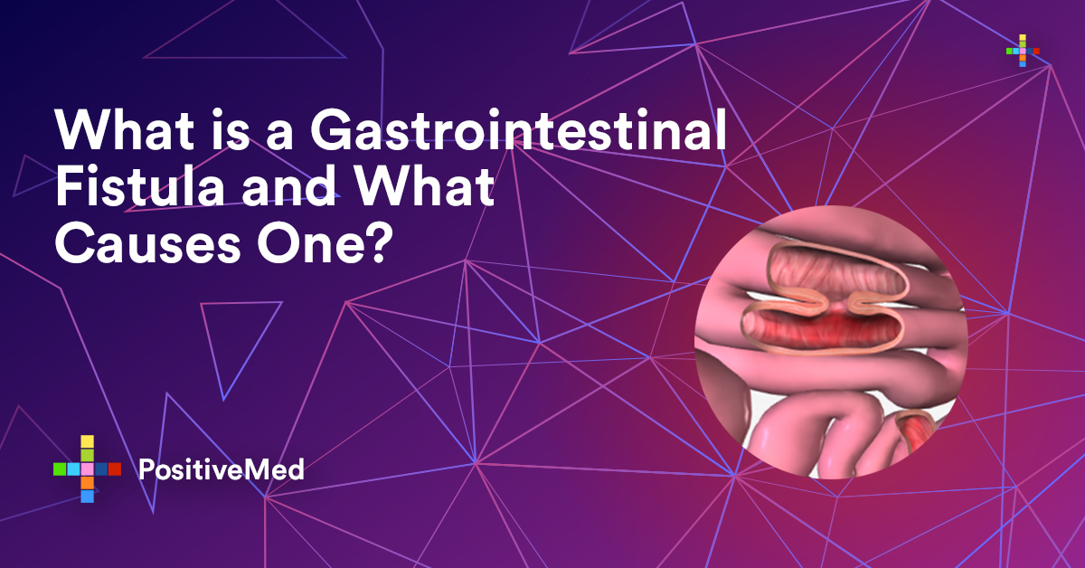 What is a Gastrointestinal Fistula and What Causes One ...