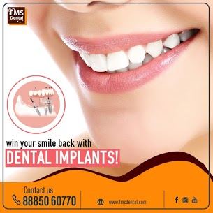 Dental Implant Clinic near me   Best Dental Implant Clinic in Kukatpally   Dental Implant Clinic in Hyderabad-8886643228   free Classified   Free Advertising   free classified ads