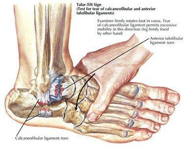 Distorsione della caviglia Test 2
