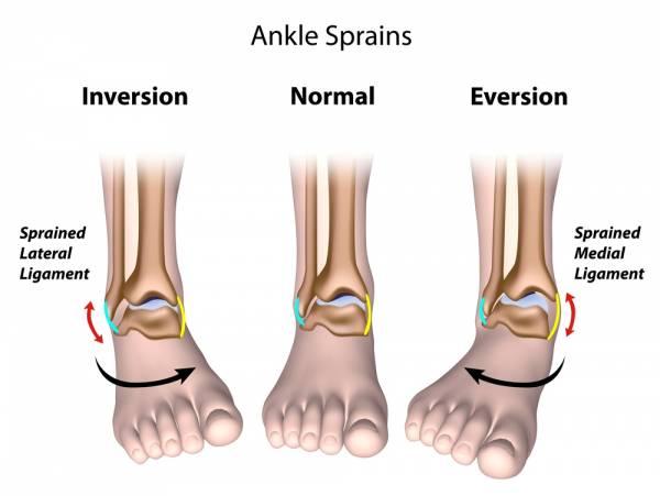 Distorsione della Caviglia 4