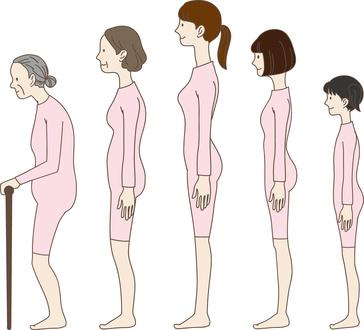 forward head posture symptoms