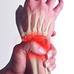rsi wrist pain