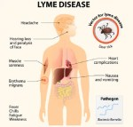 Health: Why We Should Be On The Lookout For Lyme Disease