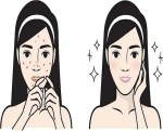 Beauty: How To Take Care Of Acne Prone Skin