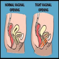 Vaginismus Is A Common Condition Leading To Painful Sex - Here Is What  You Need To Know About It