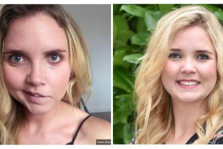 Atteinte d'une paralysie faciale, elle guérit grâce… aux selfies