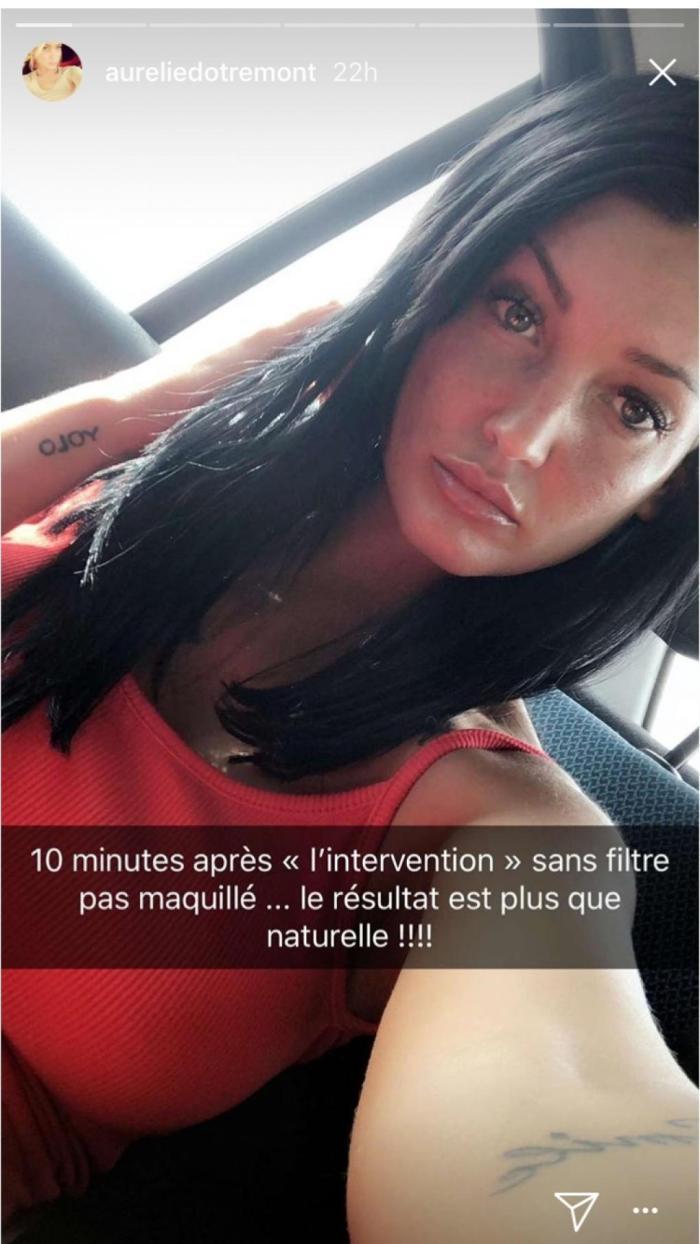 Aurélie Dotremont : Elle poursuit sa transformation physique avec une nouvelle opération !